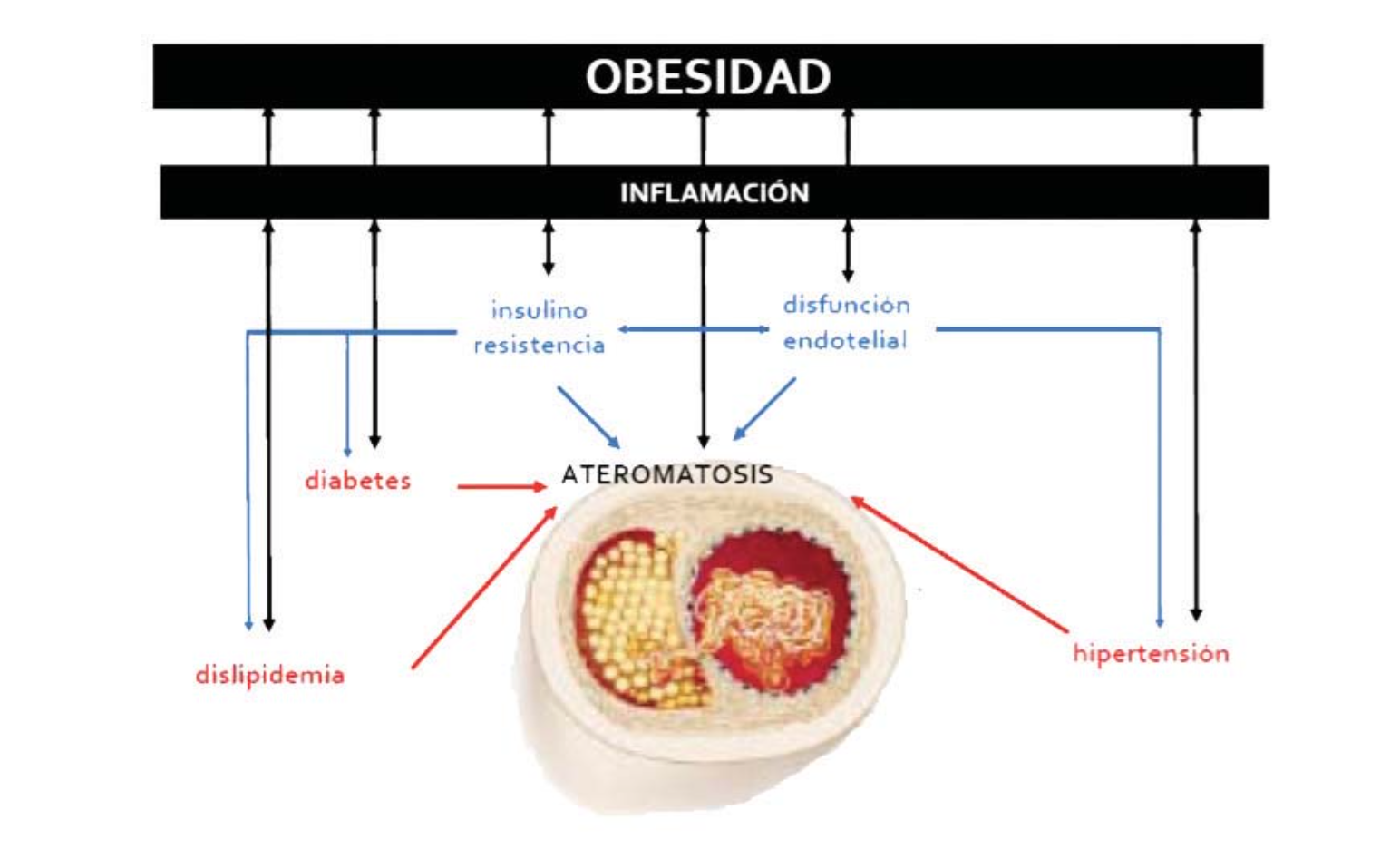 fissac _ consecuencias sistémicas obesidad inflamación